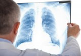 Cancro al polmone: efficace terapia combinata per melanoma cutaneo