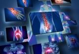 Dolore cronico muscolo scheletrico: ne soffre il 26% degli italiani