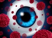 L'endoresezione di melanomi dell'uvea può preservare la vista