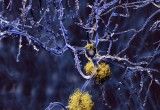 Alzheimer: nuove terapie da una proteina