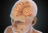 Traumi cerebrali: ritmo sonno-veglia alterato per oltre 18 mesi