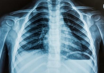 Torace: il deep learning prevede il rapporto tra flusso polmonare e sistemico