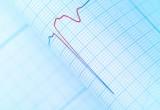 Aritmie cardiache: un modello matematico per capirne le dinamiche