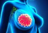 Cancro al seno: donne più aderenti a terapia se assumono altri farmaci