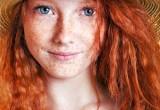 Melanoma: con gene 'silente' dei capelli rossi +42% di rischio