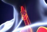 TIAMO: al via il più grande studio italiano sull'ipotiroidismo