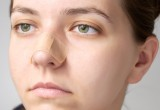 Ostruzioni nasali: mollette e dilatatori alternativa a intervento chirurgico