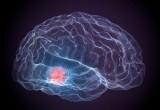 Parkinson: attaccare un enzima per arrestare la malattia