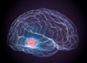 Parkinson: con stimolazione cerebrale profonda a rischio capacità nuotare