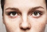 Miopia: la causa è in una cellula della retina