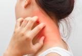 Dermatite atopica: scoperto cosa provoca il prurito