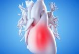 Infarto STEMI: agonisti dell'aldosterone riducono mortalità