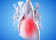 Le coronaropatie possono accelerare il deterioramento cognitivo