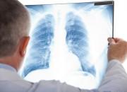 Embolia polmonare postoperatoria: rischio elevato per 12 settimane