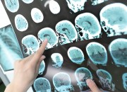 Ictus, manifestazione neurologica del COVID-19