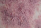 Dermatite atopica grave dell'adulto. Dalla perdita del lavoro alla depressione, l'impatto sulla vita è devastante
