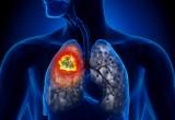 Tumore del polmone: con immunoterapia 1 paziente su 5 vivo a 3 anni