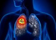 Tumore del polmone: fondamentale smettere di fumare prima dell'intervento