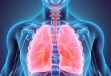 Trapianto polmone: esami di imaging utili per evidenziare rigetto
