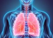 Fibrosi idiopatica polmonare: analisi genetica prevede decorso