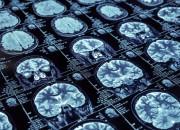 Cervello: marker radiologici associati a rischio ictus e demenza