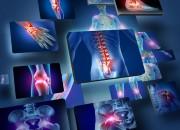 Artrite: -40% dei sintomi con esercizio fisico