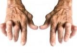 Artrite Reumatoide: arriva in Italia la molecola che blocca l'infiammazione dall'interno delle cellule