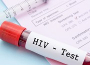 HIV: pochi adolescenti a rischio si sottopongono al test