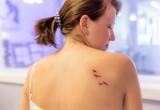 Psoriasi: perché è meglio evitare i tatuaggi