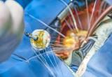 Insufficienza valvola mitrale: sostituzione mininvasiva efficace e sicura