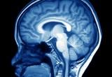 Droga e adolescenti: prevederne l'utilizzo con la risonanza magnetica