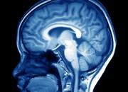 """Schizofrenia e autismo: un gene """"cambia"""" la struttura del cervello"""