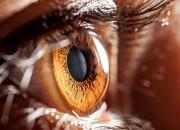"""Occhio: iniezioni con """"mini-ago"""" riducono dolore e reflusso"""