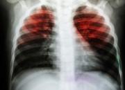 Tubercolosi in pazienti HIV: utile la radiografia per la diagnosi