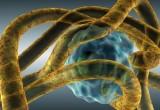 Infezioni: un fattore di rischio di ictus ischemico