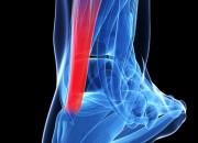Tendine di Achille: chirurgia o terapia conservativa?