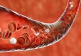 Antiaggreganti: negli anziani rischio emorragico aumentato, ma PPI possono contrastarlo