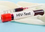 HIV, dopo 19 anni scoperto nuovo ceppo