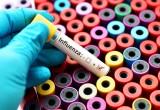 Influenza: diagnosi più accurate con i nuovi test immunologici rapidi