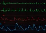 Fibrillazione atriale. Smartwatch, app e dispositivo ad hoc efficaci per la diagnosi