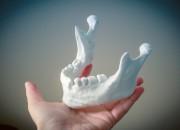 Stampa 3D: il futuro delle ricostruzioni ossee