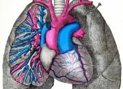 Aorta: analisi genoma aiuta a prevedere rischio aneurisma