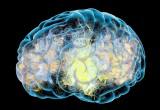 Medtronic: FDA estende uso dispositivo per aneurismi cerebrali