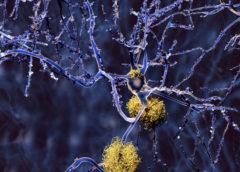 Approvazione di aducanumab contro l'Alzheimer: una svolta tra molte incertezze