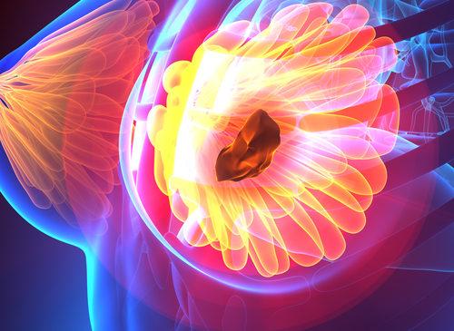Le giovani donne che ricevono radiazioni a sinistra per tumore al seno sono a maggior rischio di cardiopatia