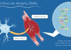 Atrofia muscolare spinale, nuovi e importanti risultati per onasemnogene abeparvovec