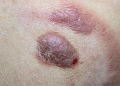 linfoma cutaneo