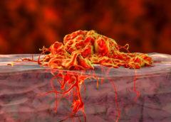 tumore gastrico