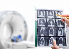 tomografia polmoni
