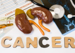 cancro rene